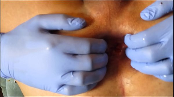 Prolapse, Extreme anal, Anal prolapse, Wide open, Teen anal gape, Open anal